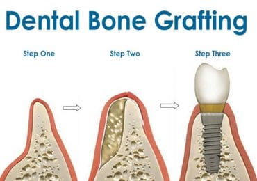 dental bone grafting irvine orange county