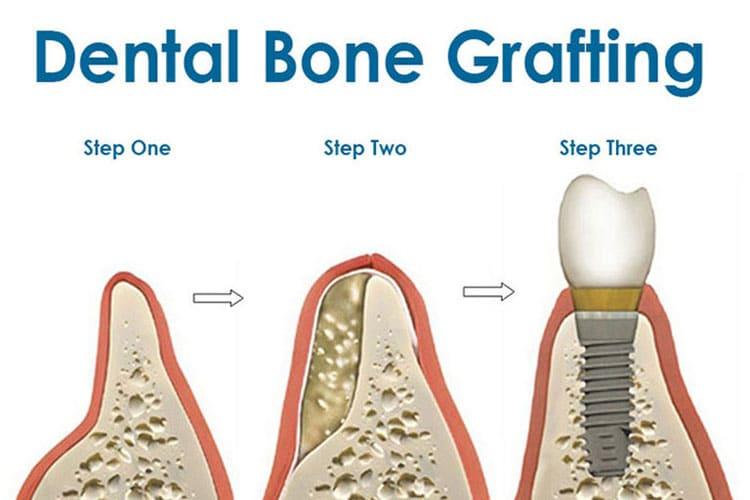 dental bone grafting irvine orange county