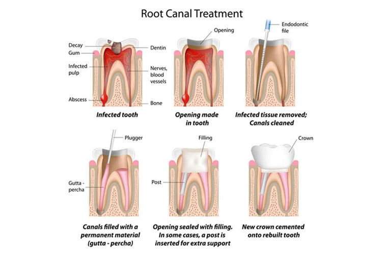 root canal treatment irvine orange county