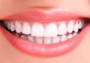 teeth whitening dentist irvine