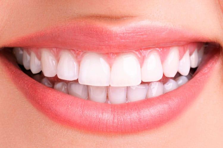 teeth whitening dentist irvine