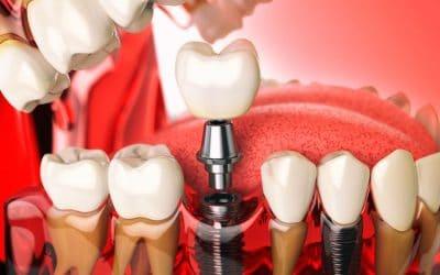 dental implants orange county